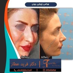 جراحی-بینی-در-کرج-145