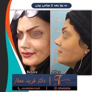 جراحی-بینی-در-کرج-148
