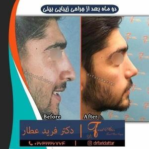 جراحی-بینی-در-کرج-150