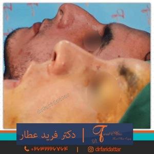 جراحی-بینی-در-کرج-161