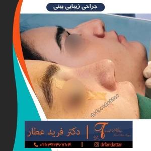 جراحی-بینی-در-کرج-162