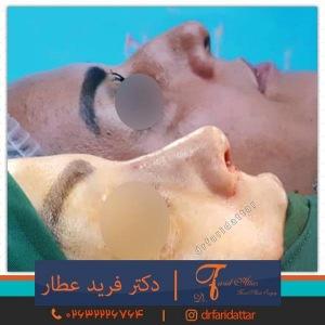 جراحی-بینی-در-کرج-164