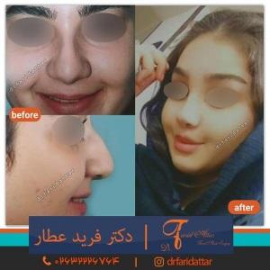 جراحی-بینی-در-کرج-167