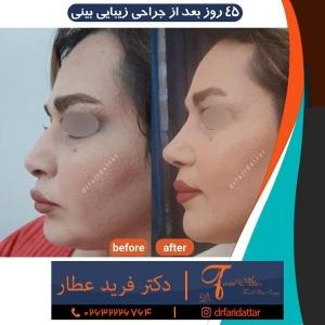 جراحی-بینی-در-کرج-204