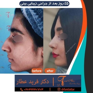 جراحی-بینی-در-کرج-207