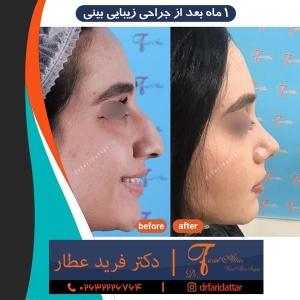 جراحی-بینی-در-کرج-210
