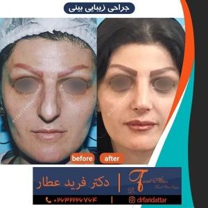 جراحی-بینی-در-کرج-211