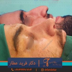 جراحی-بینی-در-کرج-223