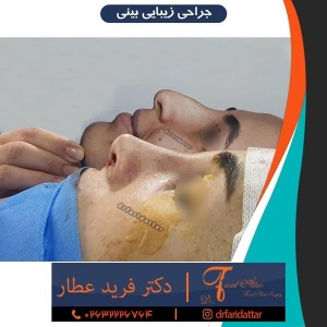 جراحی-بینی-در-کرج-224