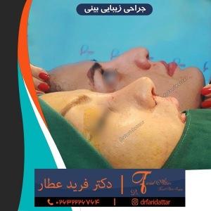 جراحی-بینی-در-کرج-228