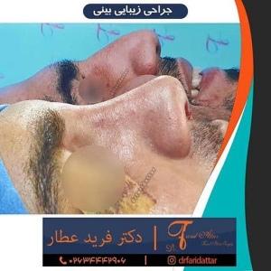 جراحی-بینی-در-کرج-321