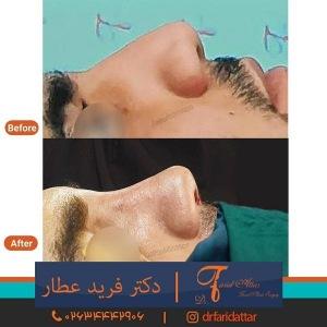 جراحی-بینی-در-کرج-322