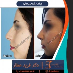 جراحی بینی 64