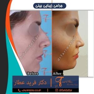 جراحی بینی 90