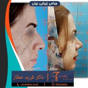 نمونه عکس جراحی بینی 37