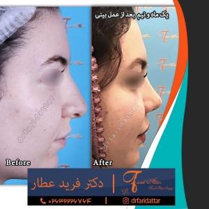 نمونه عکس جراحی بینی 41