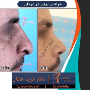 جراحی بینی در مردان