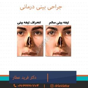 جراحی بینی درمانی