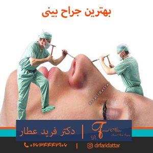 بهترین جراح بینی کرج